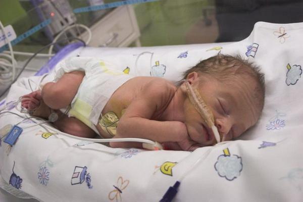 Фото рожденных на 29 неделе беременности